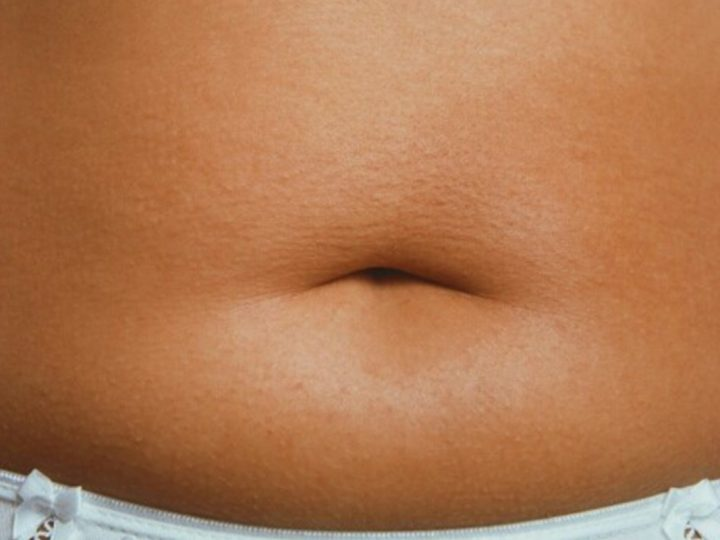10 Amazing Tips to Get Rid of Belly Fat