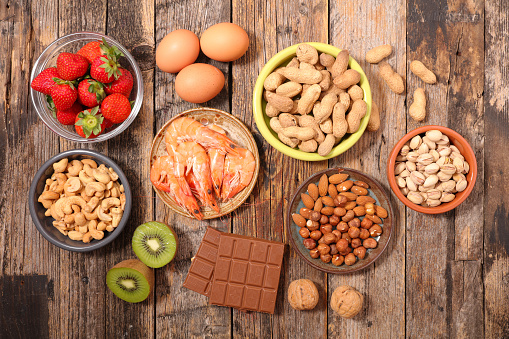 7 Tips to Reduce Your Child's Risk of Food Allergies